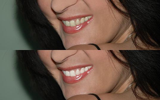отбеливание зубов с помощью лазера